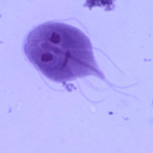 Teddy land: Giardia Lamblia